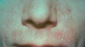 seborrhoeic_dermatitis.jpg